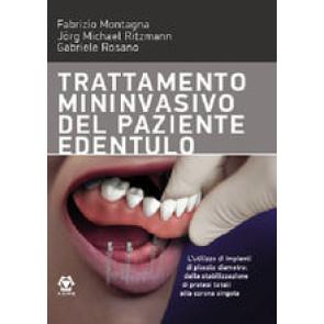 TRATTAMENTO MININVASIVO DEL PAZIENTE EDENTULO